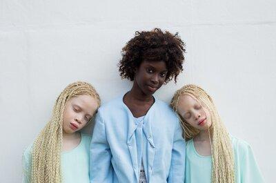 Albinismo y moda: conoce a las gemelas que están rompiendo estereotipos