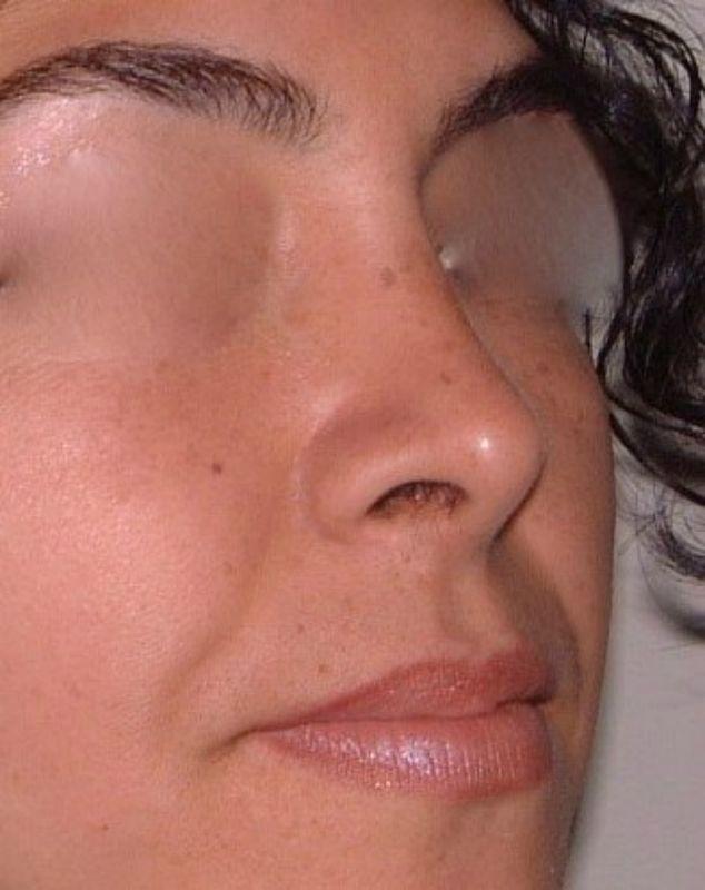 Imagen Cirugía Plástica