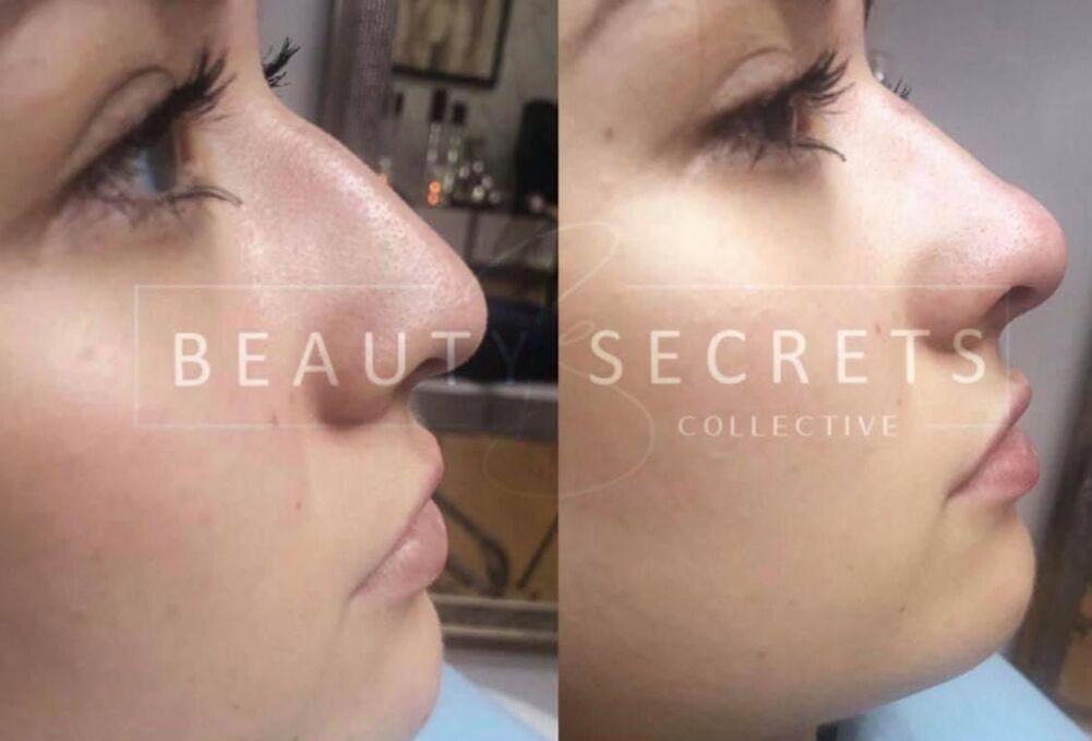 Beauty Secrets RS