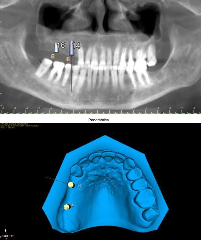 PyE Dental