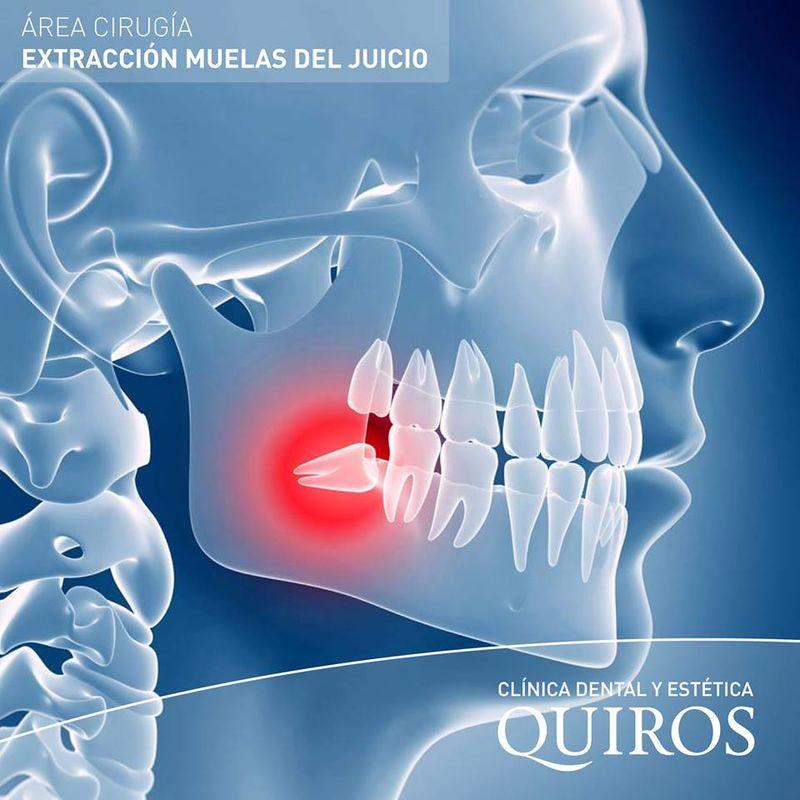 Clínica Dental y Estética Quiros